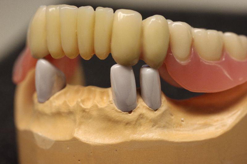 Makowskis dentalästhetik teleskop prothesen