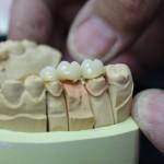 Zahnkronen, Keramikbrücken, Keramikinlays